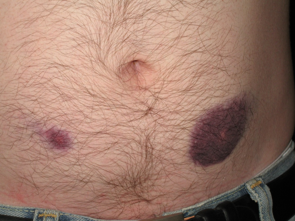 Lovenox bruises